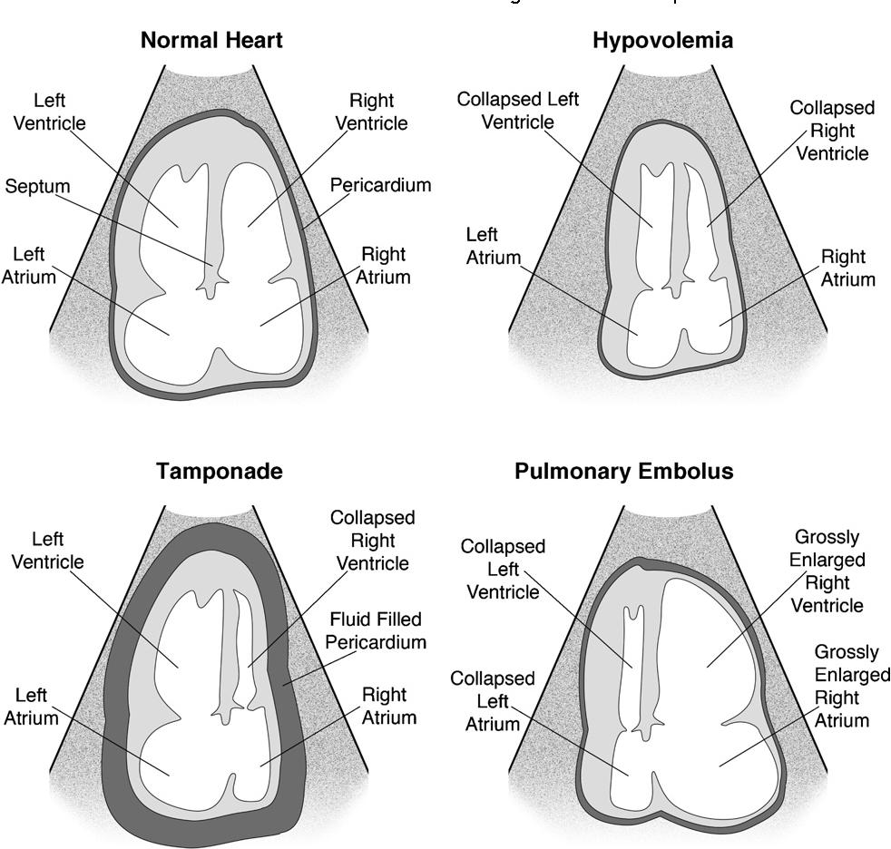 Figure 6 from C A U S E : Cardiac arrest ultra-sound exam--a