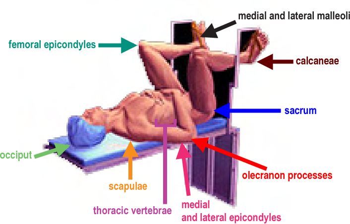 Figure 6 from Basic principles of patient positioning
