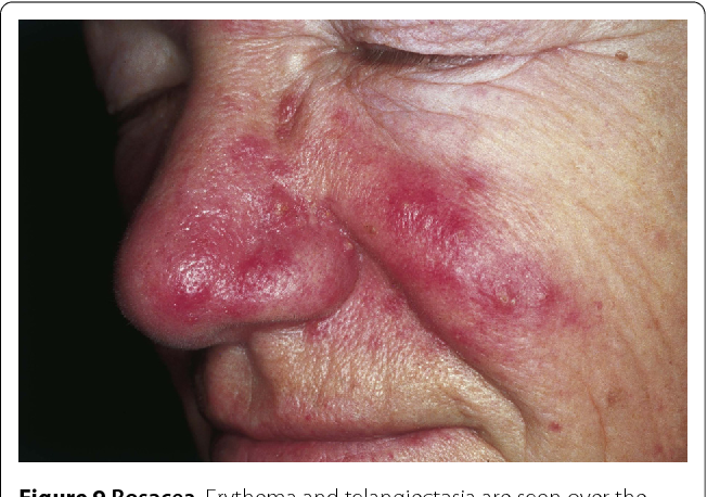Figure 2 from Cutaneous lesions of the nose - Semantic Scholar