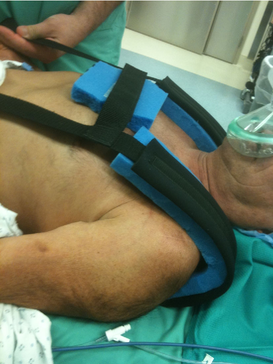 Figure 4 From Secure Patient Positioning Using Badillo