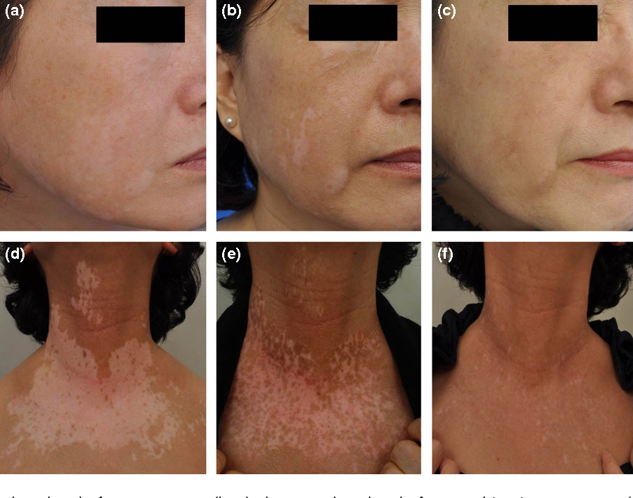 Figure 1 From Combination Treatment With Excimer Laser And