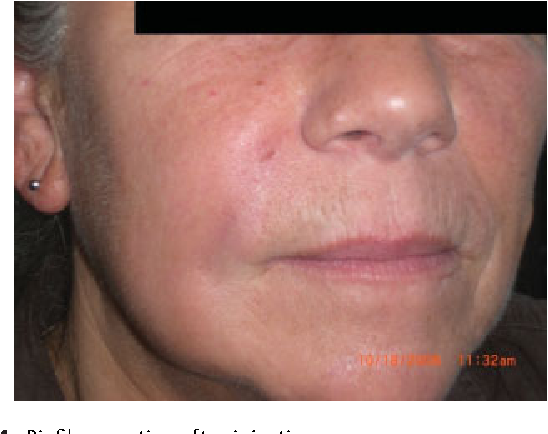 Figure 4 from Complications of collagen fillers  - Semantic