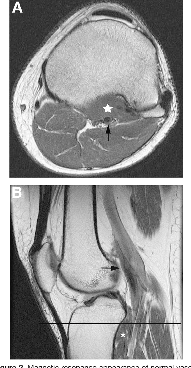 Figure 2 from The aberrant anterior tibial artery: magnetic