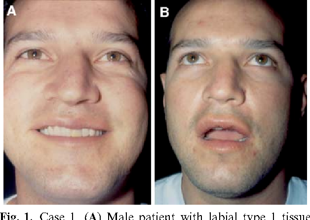 Figure 6 from Classification and Treatment of Facial Tissue