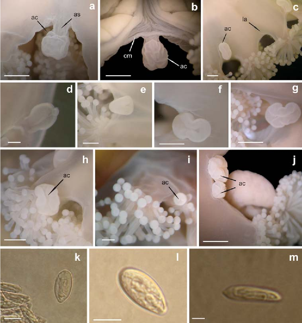 "Fig. 7 Details of anchor, tentacle cluster and nematocysts of preserved Haliclystus antarcticus. a ac anchor, as anchor stalk; b ac anchor, cm coronal muscle; c ac anchor, la lacking anchor; d–g anchor development: d anchor with a tentacular knob at young specimen (without gonads); e triangular anchor, with a shallow groove at basal region; f median ontogenetic stage cross constricted at central region, approximately ""8""- shaped, forming a longitudinal groove at central region; g mature specimen, with wrinkled aspect; h anchor (ac) together with tentacular cluster; i abnormal anchor (ac) together with tentacular cluster; j specimen with two anchors (ac); k nematocysts; l microbasic heterotrichous; m isorhiza (atrichous or holotrichous). Scales a–c, f–h, j 2.3 mm, d, i 0.4 mm, e 1.0 mm, k, l 9.0 m and m 5.0 m"