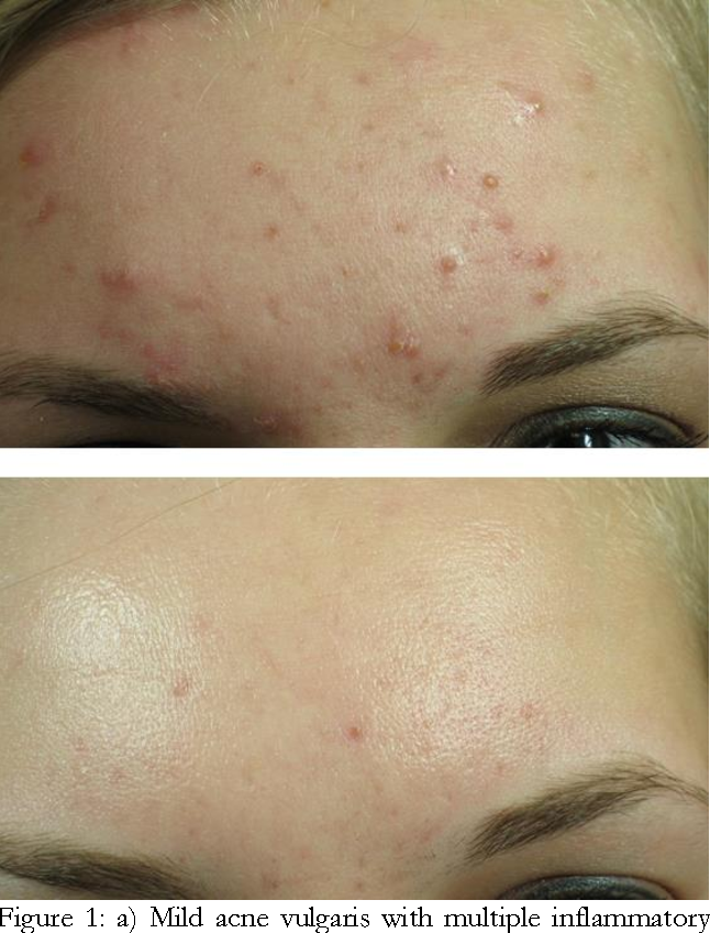 Figure 1 From Case Report Treatment Of Acne Vulgaris With Long Pulsed 1064 Nm Nd Yag Laser Semantic Scholar