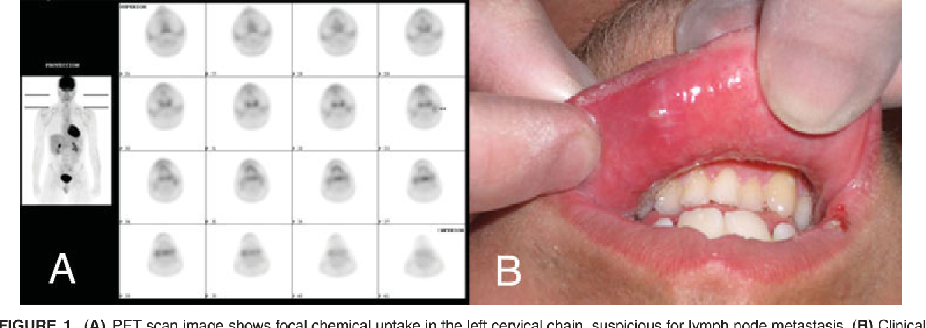 Figure 1 from Oral primary angiosarcoma of the lower lip