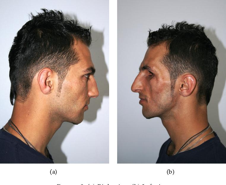 Sindrome de parry romberg