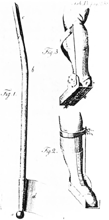 Fig. 12 The sabot de Venel, an active brace for the correction of clubfeet.
