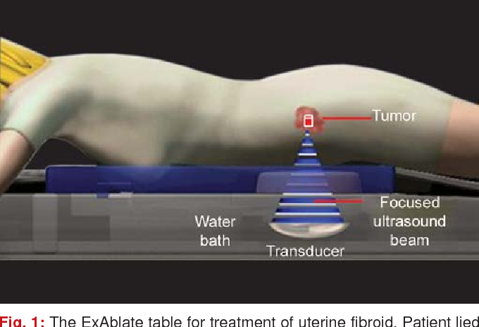 Figure 1 From Magnetic Resonance Guided Focused Ultrasound