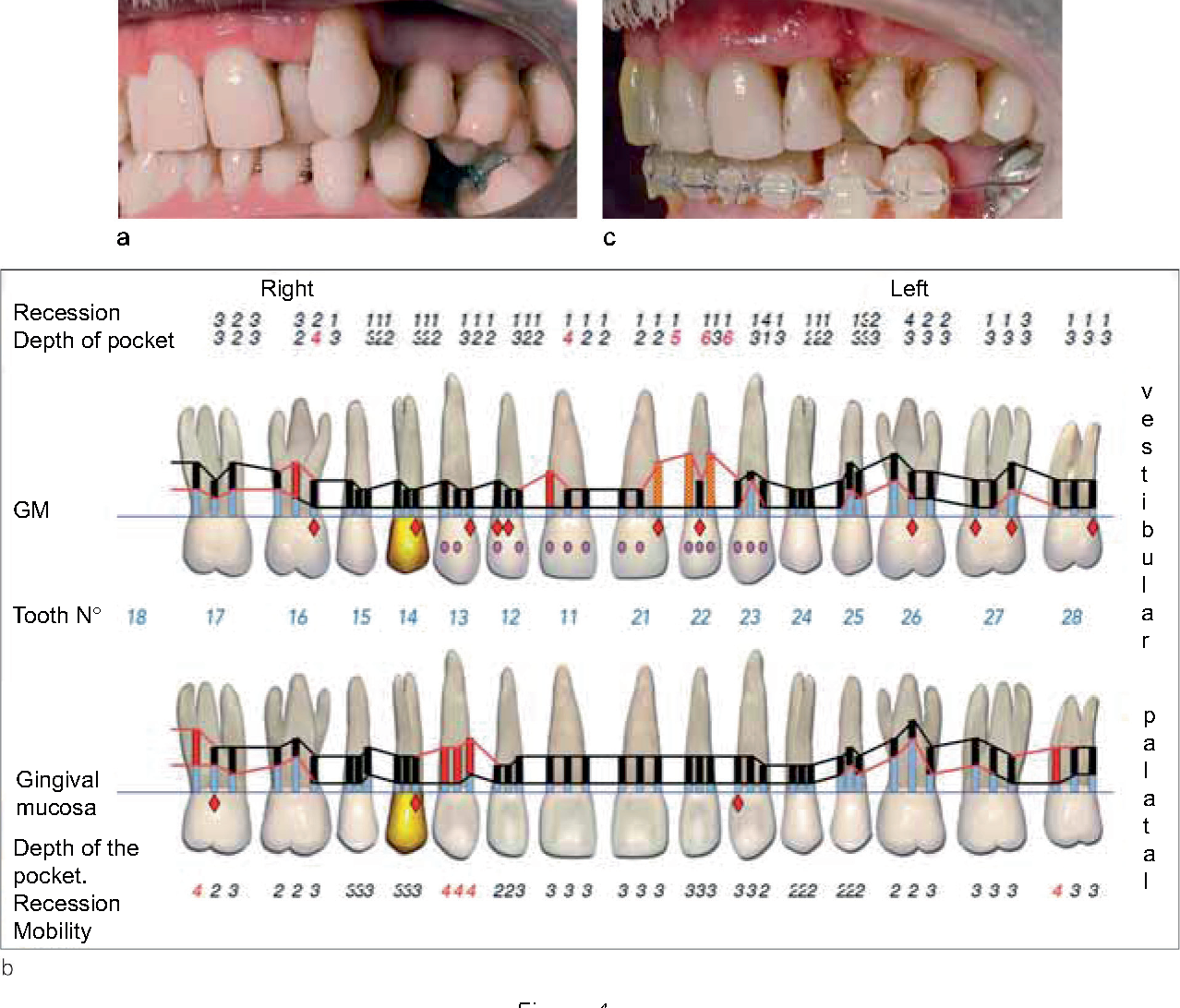 Figure 3 From Healing Processes Following Tooth Extraction In Orthodontic Cases Semantic Scholar