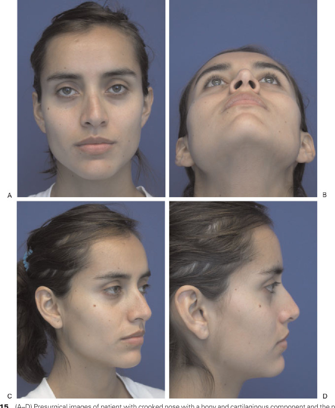 Figure 15 from Ethnic considerations of the crooked nose