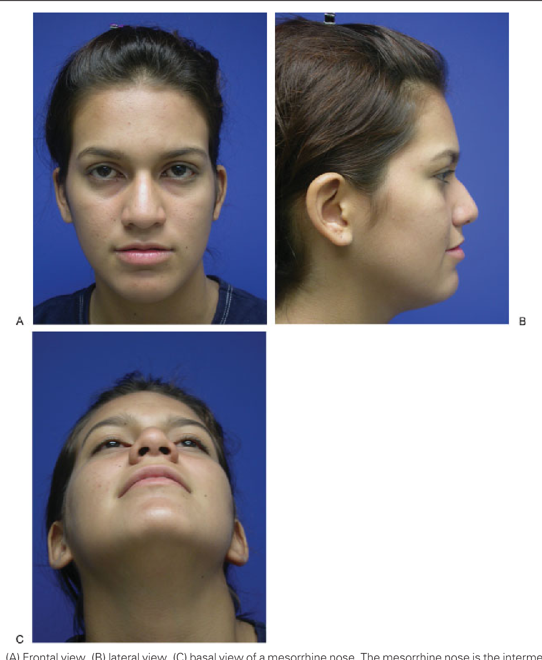 Figure 16 from Ethnic considerations of the crooked nose
