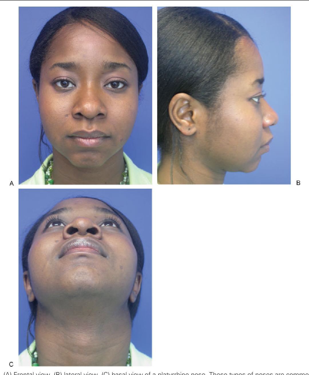Figure 2 from Ethnic considerations of the crooked nose