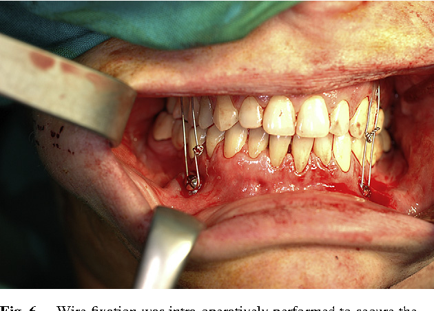 Pdf Total Temporomandibular Joint Replacement A Clinical Case