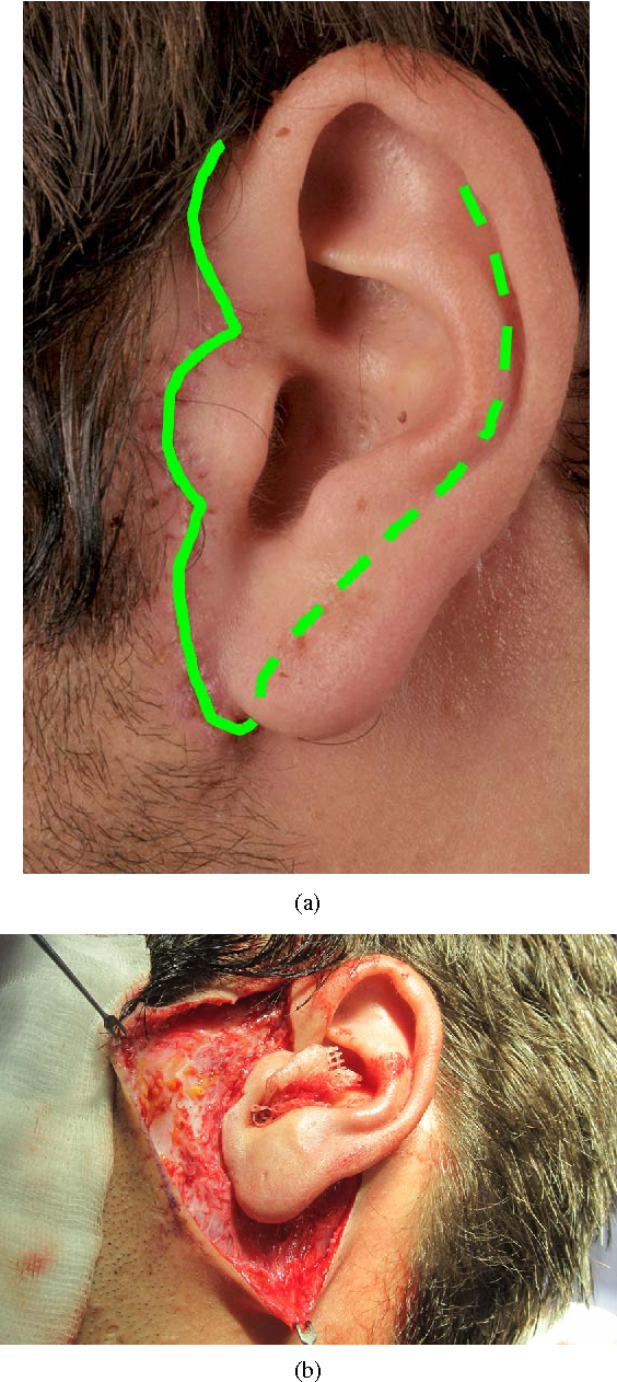 Figure 2 from The Preauricular Sinus: A Novel Approach for