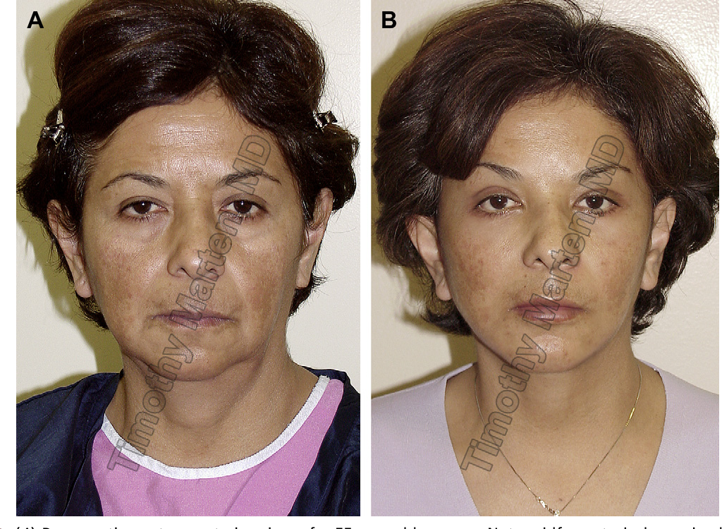 Figure 45 from High SMAS facelift: combined single flap ...