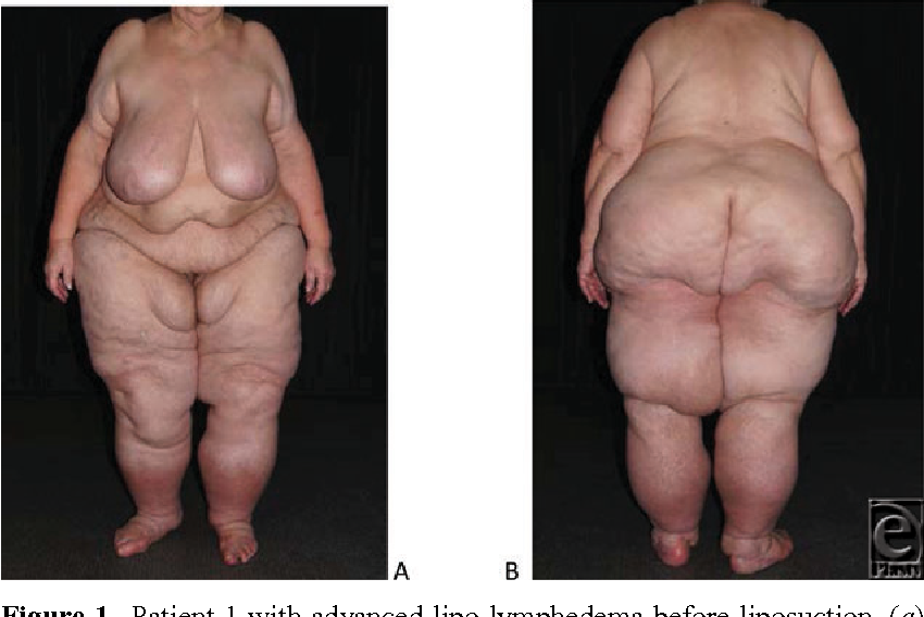 Figure 1 From Debulking Surgery For Elephantiasis Nostras