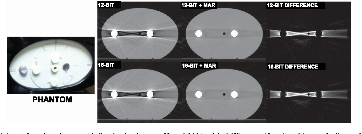 Changes realized from extended bit-depth and metal artifact