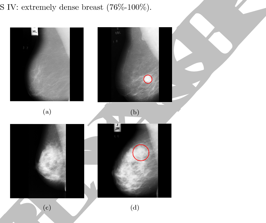 Figure 1 From Analysis Of Tissue Abnormality And Breast Density In
