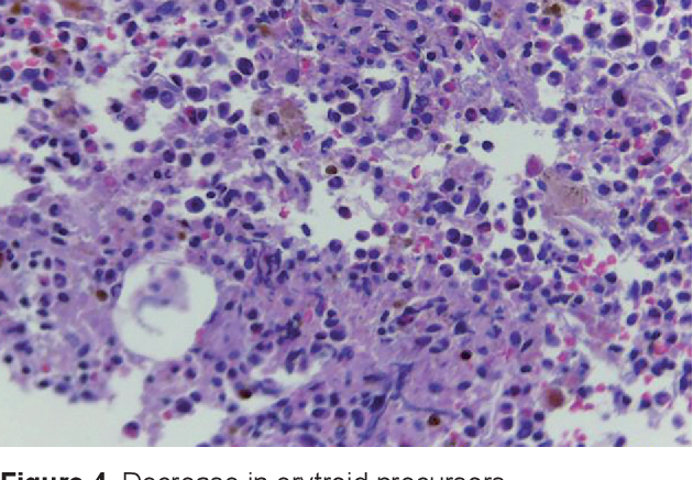 Figure 4 from Good's Syndrome with Pneumocystis Jiroveci