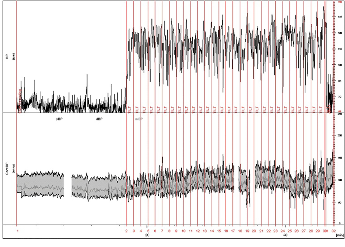 Figure 1 From Postural Orthostatic Tachycardia Syndrome