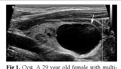 Figure 1 From Thyroid Ultrasound State Of The Art Part 2 Focal