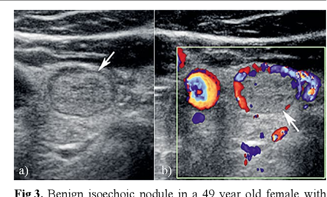 Figure 3 From Thyroid Ultrasound State Of The Art Part 2 Focal Thyroid Lesions Semantic Scholar