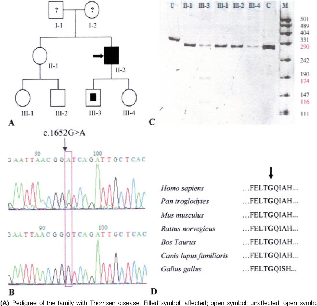 Figure 1 From A Novel Clcn1 Mutation G1652a Causing A Mild