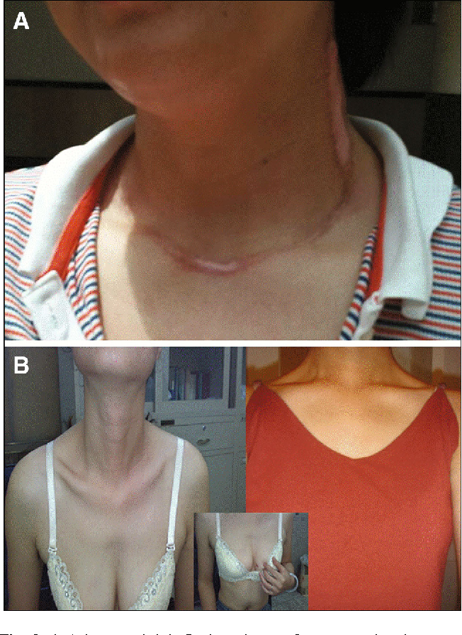 Figure 3 From Scarless In The Neck Endoscopic Thyroidectomy
