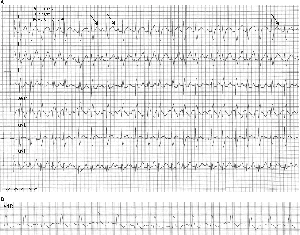 Figure 2 from Multifocal atrial tachycardia in 2 children
