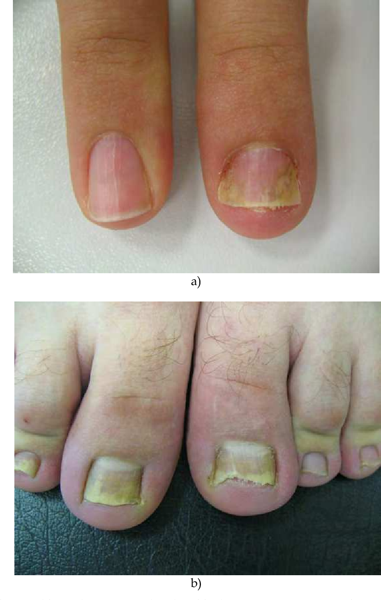 Figure 15 from 9 Nail Psoriasis - Semantic Scholar