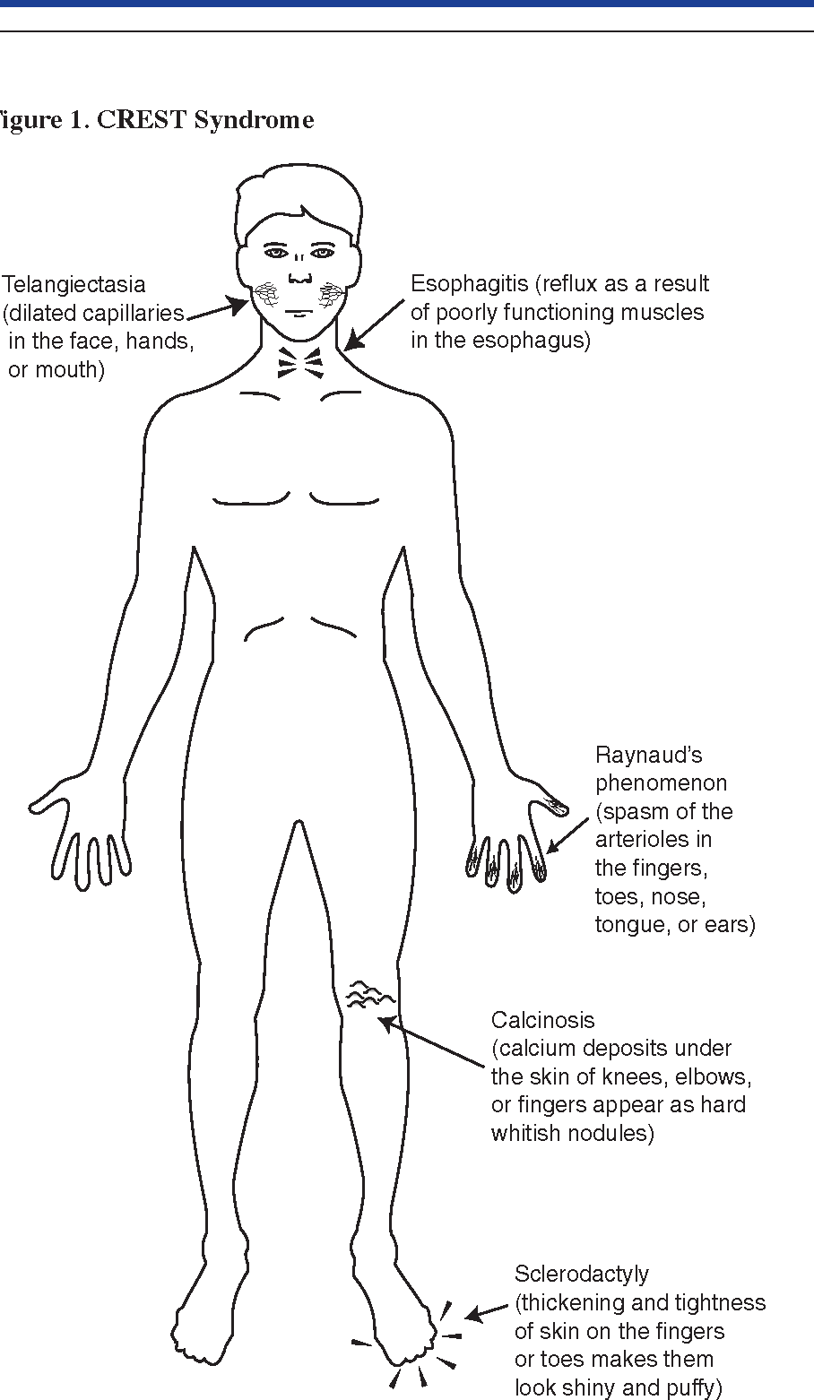 Figure 1 from Natural remedies for scleroderma  - Semantic