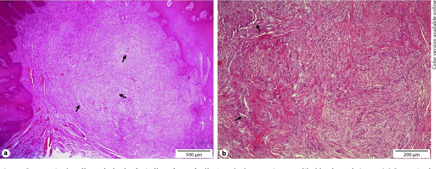 Figure 2 from Myofibroma of the oral mucosa: a case report