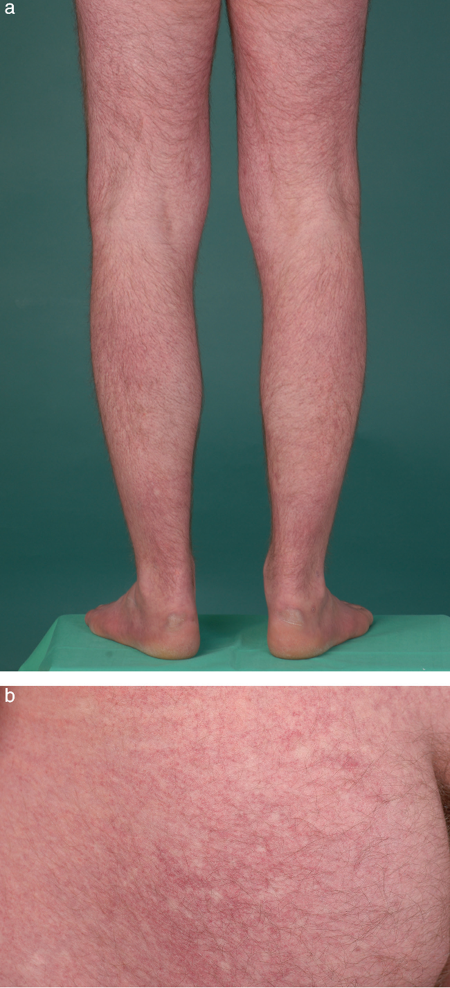 Figure 1 from Dengue fever and the differential diagnoses of