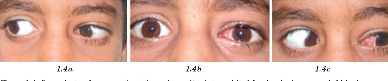 PDF] Intraorbital foreign body: clinical presentation ...