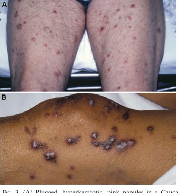 Kidney Disease Skin Blisters Kidney Failure Disease