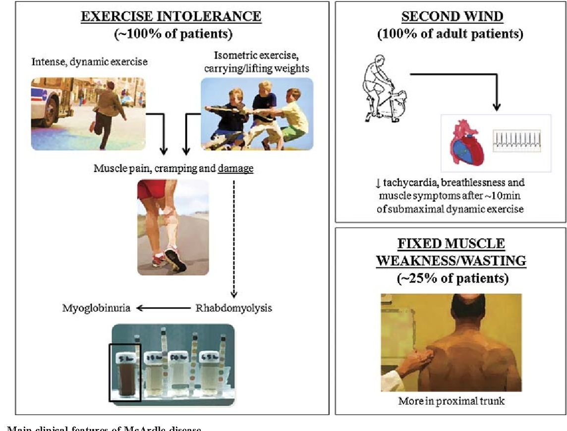 Pdf Exercise And Preexercise Nutrition As Treatment For Mcardle Disease Semantic Scholar