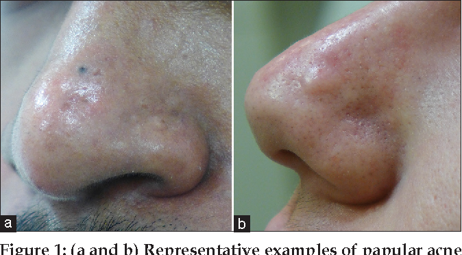 Figure 1 From Papular Acne Scars Of The Nose And Chin An Under