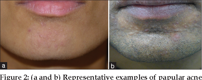 Figure 2 From Papular Acne Scars Of The Nose And Chin An Under Recognised Variant Of Acne Scarring Semantic Scholar