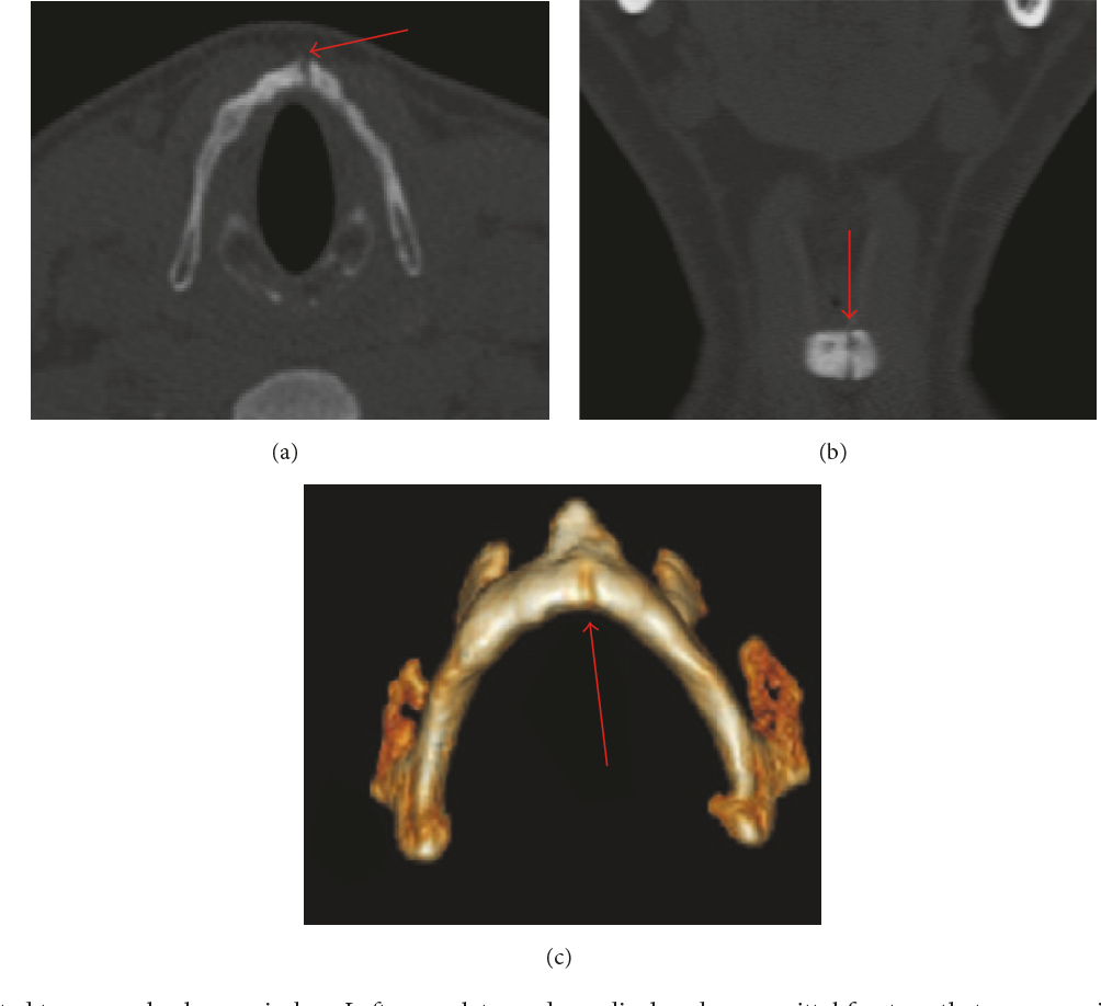 Pdf Nontraumatic Laryngeal Fractures Report Of Two Cases And