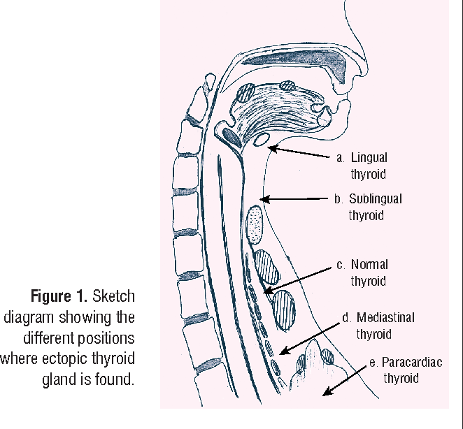 Figure 1 From The Ectopic Thyroid Gland And The Role Of Nuclear