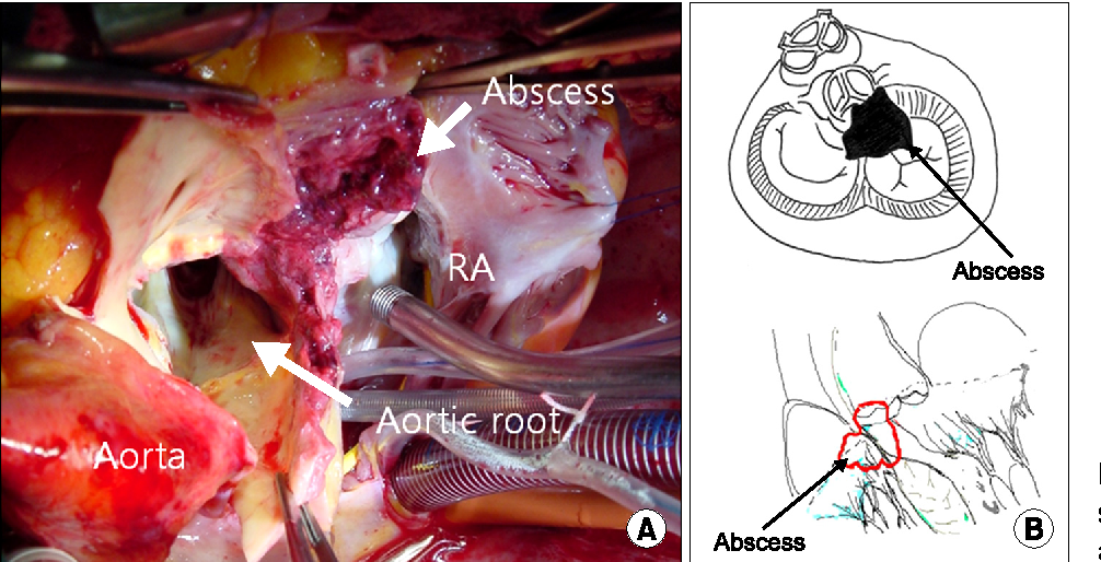 Figure 2 from Aortic Periannular Abscess Invading into the