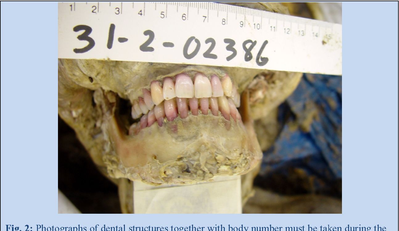 Figure 2 From Forensic Odontology In The Disaster Victim Identification Process Semantic Scholar
