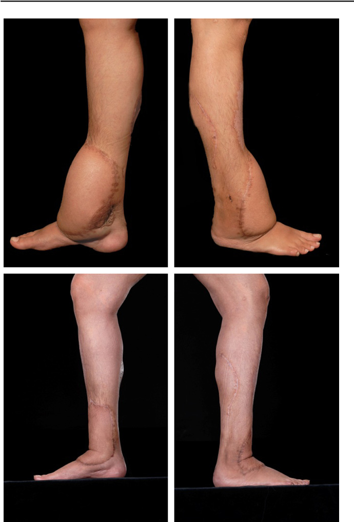 Figure 4 from Outcomes of anterolateral thigh free flap