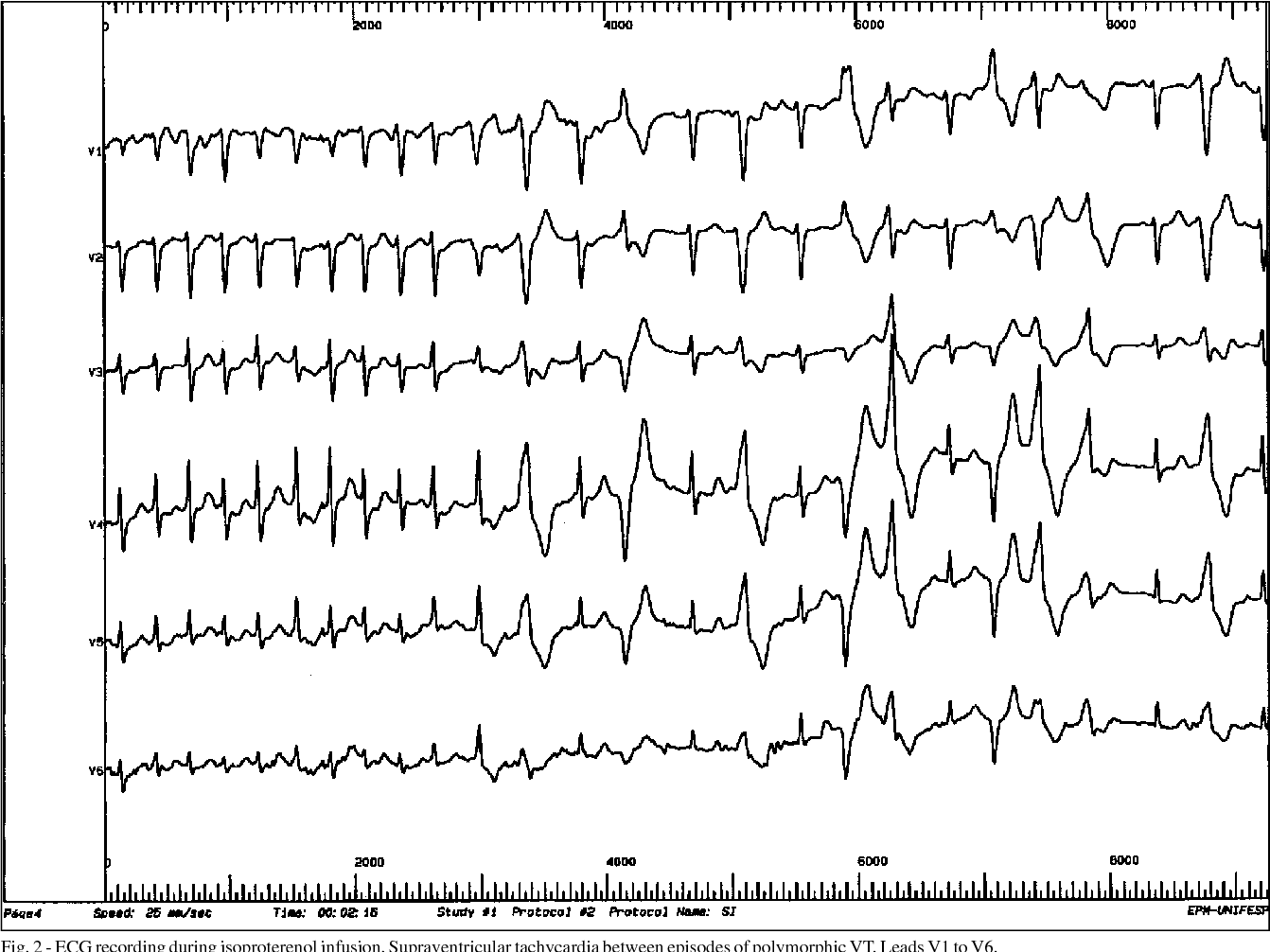 Figure 2 From Sp Brazil Catecholaminergic Polymorphic Ventricular Tachycardia An Important Diagnosis In Children With Syncope And Normal Heart Brief Report Semantic Scholar