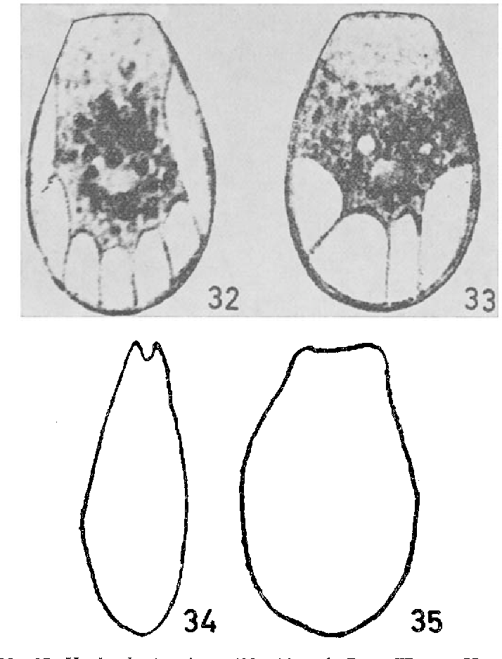 figure 32-35