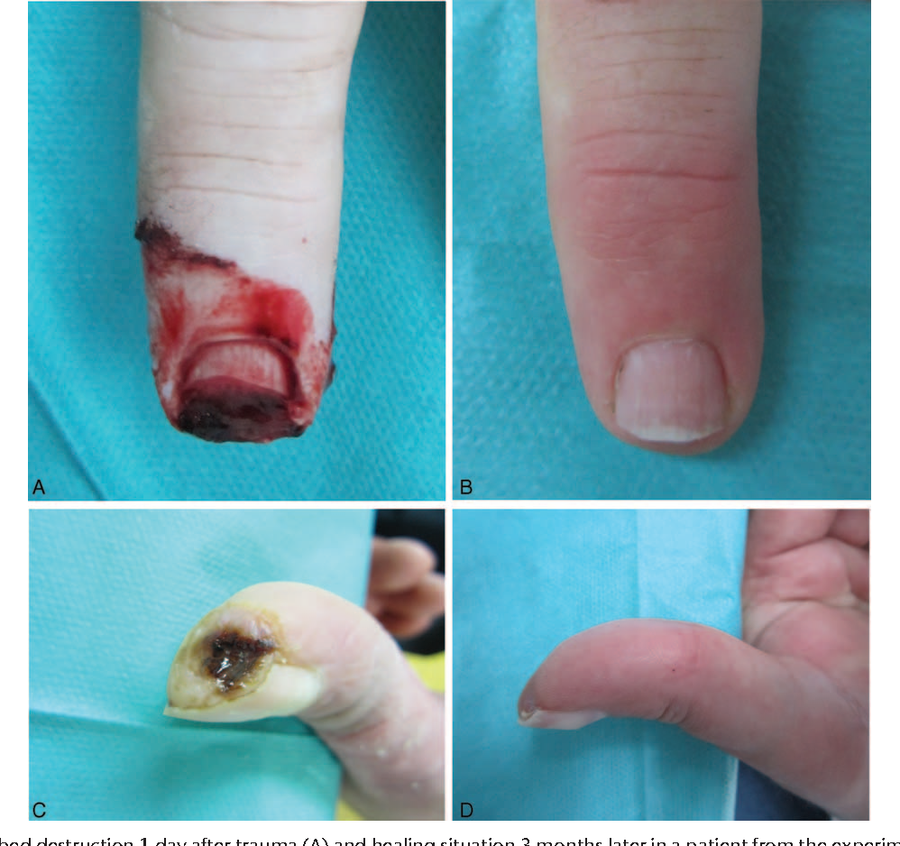 Figure 2 from Collection of Wound Exudate From Human Digit