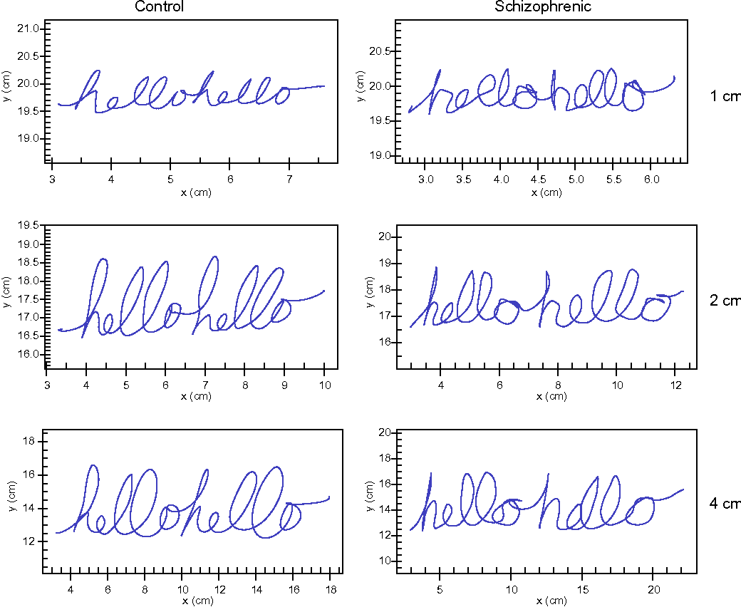 Figure 1 from Quantitative measurement of handwriting in the