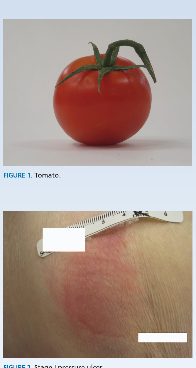 Figure 2 from Teaching the fruits of pressure ulcer staging